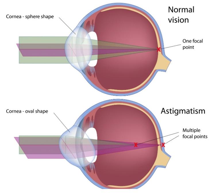 eye shape astigmatism